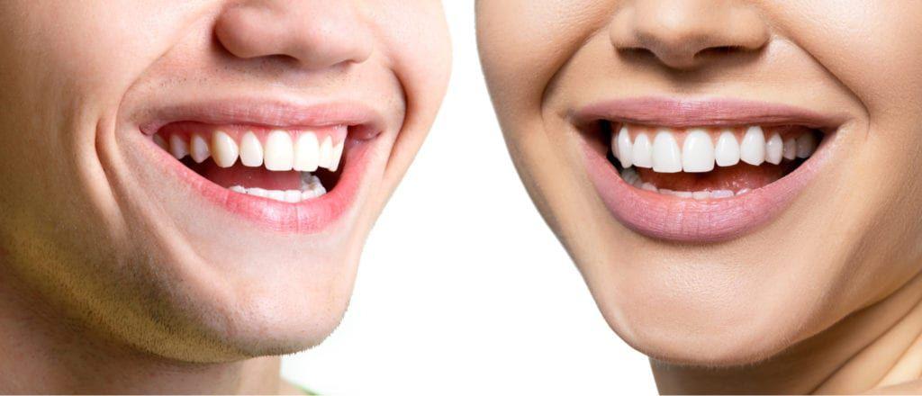 man woman smiling perfect teeth