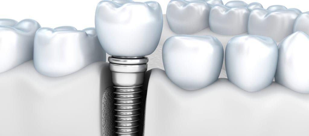 3d image root canal